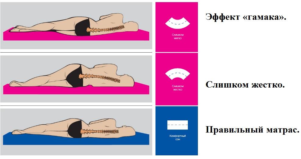 Левосторонний грудной сколиоз позвоночника упражнения видео
