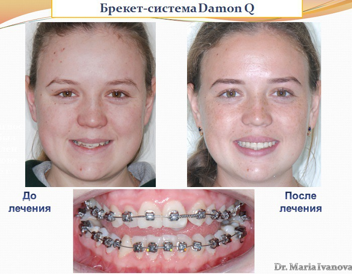 Металлические брекеты отзывы фото до и после