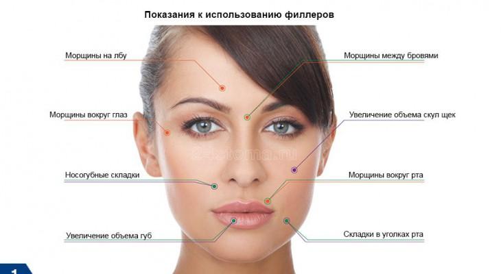 Косметический салон и инъекции в Чебоксарах на основе гиалуроновой кислоты  | Новости Чувашии | Новости Чебоксар и Новочебоксарска